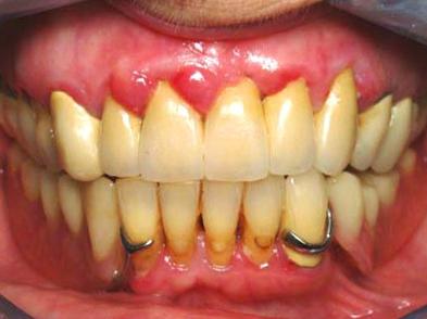 diagnostiquer et rep rer les signes d 39 un d chaussement dentaire. Black Bedroom Furniture Sets. Home Design Ideas